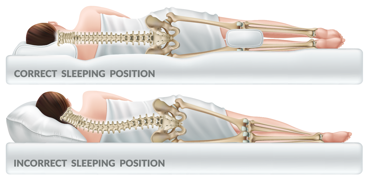 diagram of correct spine position when sleeping on side; blog: The Best Sleep Positions for Back Pain Relief